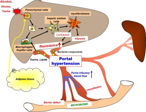 an analysis of the characteristics symptoms and treatment of portal hypertension a medical condition