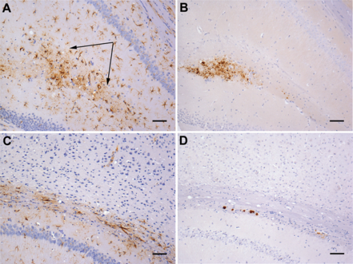 Gliosis in transgenic mice following inoculation with brain homogenate prepared from a postmortem sample from a person with variably protease-sensitive prionopathy. A) Immunohistochemical staining for GFAP in the hippocampus of a HuVV mouse showing microplaque-like deposits. Arrows indicate areas of reactive astrocytosis. B) A serial section from the same HuVV mouse immunolabeled for PrP by using monoclonal antibody (Purified [3F4], Cambridge Bioscience, Cambridge, UK). C) Immunohistochemical staining for GFAP in the hippocampus of a HuVV mouse showing plaque-like deposits. No reactive astrocytosis is seen in the vicinity of plaques. D) A serial section from the same HuVV mouse immunolabeled for PrP by using monoclonal antibody 3F4. GFAP, glial fibrillary acid protein; HuVV, transgenic mouse expressing human PrP gene sequence coding for the valine-homozygous codon 129 genotype; PrP, prion protein. Scale bars indicate 50 μm.