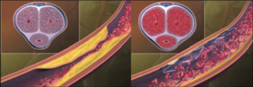 Left panel: Atherosclerotic narrowing in the internal pudendal artery resulting in poor arterial inflow and ED with suboptimal filling of penile cavernosal tissue. Right panel: Improved arterial inflow after implantation of a zotarolimus-eluting peripheral stent system. This figure is reproduced with permission from Rogers et al.14