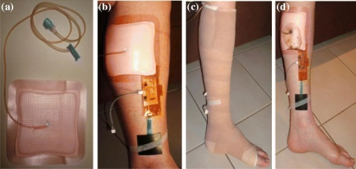 Sensing system under a 4-layer compression bandage. (a) Allevyn™ dressing with micro-volume extension set in place prior to application. (b) Dressing and sensors in place on leg prior to bandage application. (c) Bandaging in place immediately following application. (d) Dressing and sensors in place immediately following removal of bandages.