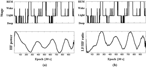 Sleep stages: (a) HF power and (b) LF/HF ratio from capacitive textile system of subject B during PSG.