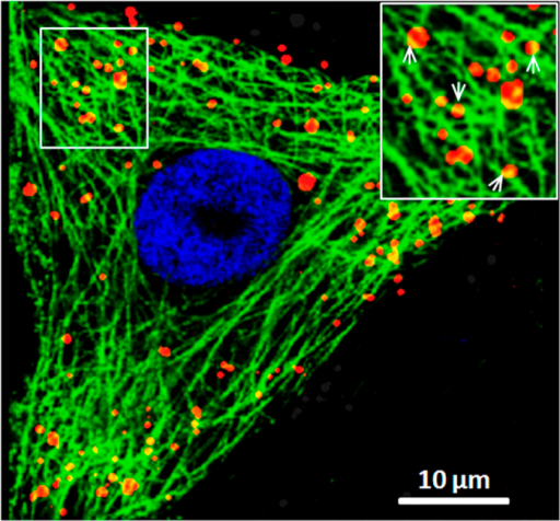 Colocalization of SRV9 particles with microtubules.Immunofluorescence was performed at cells infected by Cy5-labele SRV9 (red) after 30 min using anti-tublin antibody (green). The white square region is magnified and shown in the inset. The white arrows represent some examples of colocalization of Cy5-labeled SRV9 with FITC-tagged microtubules. Scale bar: 10 μm.