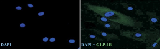 Glucagon-like peptide-1 (GLP-1) receptor expression in adipose-derived stem cells (ADSCs) was detected by immunofluorescence staining (green). Nuclei were labeled with DAPI (blue). Original magnification, × 200.