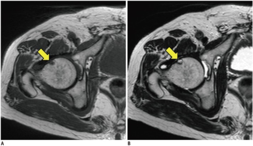 Presence of herniation pit was determined on MRI.It was shown as focal fibrocystic lesion with low signal intensity (arrow) on T1-weighted image (A) and intermediate to high signal intensity (arrow) on T2-weighted image (B) in location of femur head and neck junction.