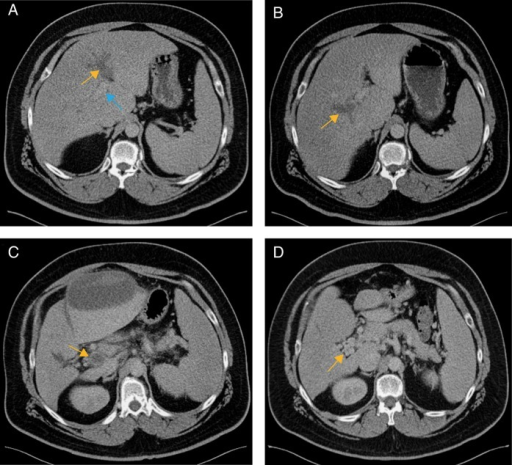 Contrast-enhanced CT.A, Acute thrombosis of the umbilical segment of the left portal vein presenting as a hypodense filling defect (yellow arrow). Contrast opacification is seen proximally in the left portal vein (blue arrow); B, Acute thrombosis of the right portal vein presenting as a hypodense filling defect (yellow arrow) 2 months later in the same patient as Fig. 2A; C, Several months later in the same patient as Fig. 2A, thrombosis has propagated to the main portal vein and is similarly seen as a hypodense filling defect (yellow arrow). Incidentally, there is a subacute hematoma anteriorly after a liver biopsy; D, Follow-up CT 1 year later demonstrates cavernous transformation of the portal vein. Numerous tortuous venous collaterals have replaced the chronically thrombosed portal vein (yellow arrow).