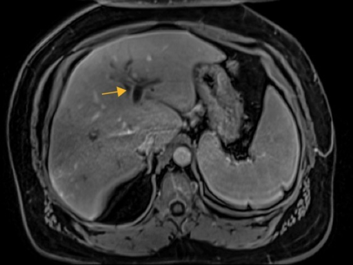 Contrast-enhanced T1-weighted MRI.A fat-suppressed, volumetric interpolated breath hold examination (VIBE) MRI image in the same patient as Fig. 2A, demonstrates a hypointense filling defect in the left portal vein (yellow arrow) consistent with acute thrombosis.