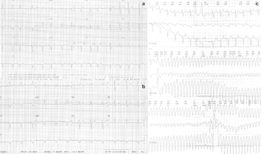 A. ECG at initial evaluation showed sinus rhythm with an incomplete right-bundle branch block and left anterior hemiblock. B: after Corevalve 29 implantation the ECG showed a slight widening of the QRS. C: Ventricular tachycardia at 300 bpm.