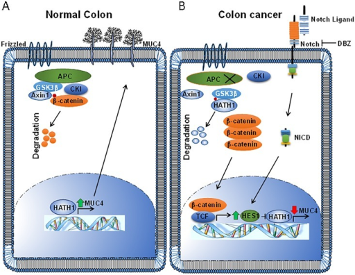 A schematic representation of the findings of this study(A) In the normal colon, Wnt signaling is inactive and Hath1 is transcriptionally active in differentiated secretory cells. Hath1 transcriptionally activates MUC4, as well as other mucins such as MUC2. (B) However, in colorectal cancer, active Wnt/β-catenin and Notch signaling transcriptionally upregulate Hes1. Hes1 antagonizes Hath1, thus reducing Hath1 levels. In addition, the Hath1 protein is targeted for phosphorylation mediated destruction by GSK3β instead of β-catenin, further reducing Hath1 levels. Thus, MUC4 is no longer actively transcribed owing to reduced Hath1, resulting in reduced MUC4.