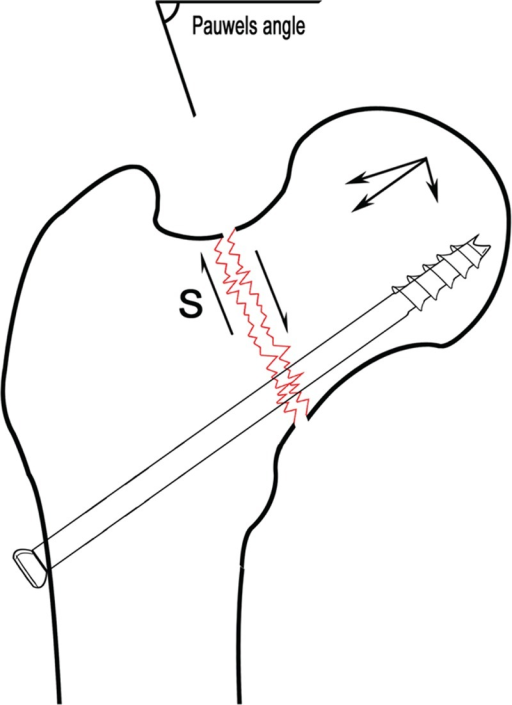 Schematic diagram of Pauwels angle. When the angle of the integrated projection of fracture line and horizontal line is >50°, the force between the fracture fragments mainly consists of shearing force (S), which is unfavorable to fracture healing.