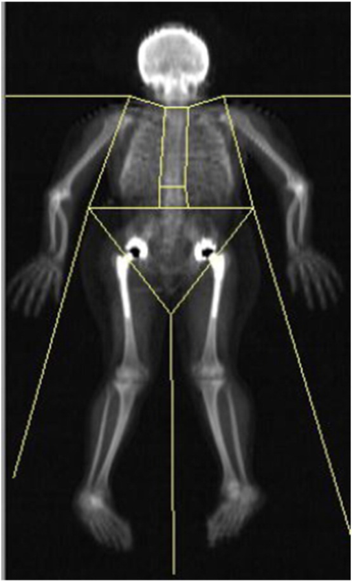Metallic prostheses used in bilateral hip replacements artificially elevate BMD on WB DXA. Every patient had artificial hips, invalidating WB DXA results. BMD, bone mineral density; WB DXA, whole body dual-energy X-ray absorptiometry.