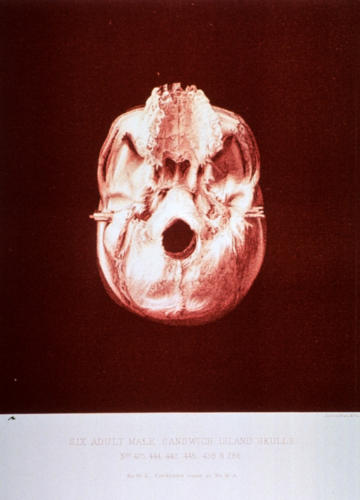<p>Black and white print of one of 6 male adult Sandwich Island skulls. This print is no. 16e that appears in &quot;On composite photography as applied to craniology; on measuring the cubic capacity of skulls, memoirs of the National Academy of Sciences; volume 3, 13th memoir&quot; by J.S. Billings and Washington Matthews.</p>