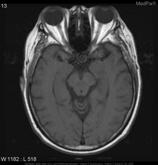 There is a mixed but primarily hypointense signal foci in the parasellar region to the left of midline extending into the pituitary fossa.