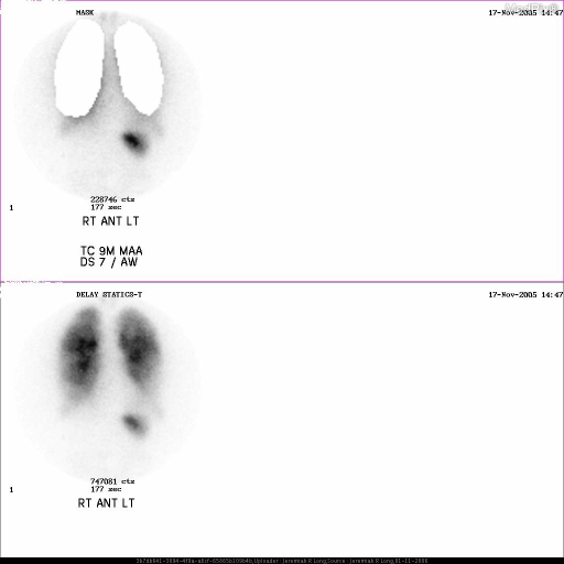 NM perfusion images from a V/Q study with a wide field of view to include the upper abdomen and neck, with masked and unmasked lungs, demonstrate radiotracer accumulation in the stomach and throid gland consistent with free Tc99m.
