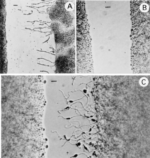 Hyphal formation on SLAD medium. (A) B-4500 × B-4476. (B) TYCC245F1 × TYCC245F1. (C) TYCC245F1 × B-4476. Cells of each isolate were streaked in parallel on SLAD medium and incubated at room temperature for 24 h (bar = 15 μm).