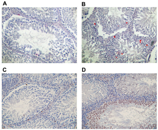 As-induced apoptosis in germ cells (TUNEL AND CASP3 immunostaining). Testes from untreated rats (A, C) or adult rats fed with 15% As (B, D). Detection of apoptotic cells was conducted through the TUNEL approach (A, B) and cleaved CASP3 immunostaining (C, D) (magnification = ×200). Red staining reveals the TUNEL positive nuclei and brown staining reveals the CASP3 cytoplasm immunostaining.