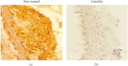 Immunohistochemistry of atherosclerosis. Panels show representative immunohistochemical findings.  VCAM-1 expression was enhanced in the aortic walls of non-treated LDLRKO mice.  However, catechin administration (2% THEA-FLAN 90S contained high fat chaw) suppressed the expression in the organs of LDLRKO mice.