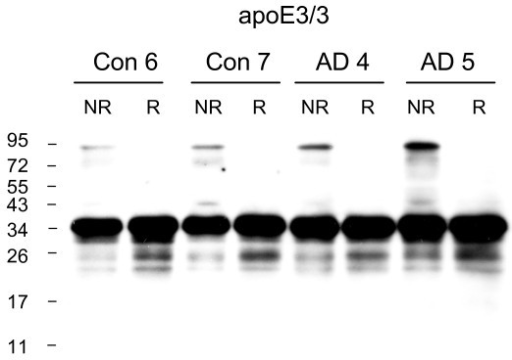ApoE3 dimers are present in the detergent (Triton-X-100) soluble fraction of both control and AD brain homogenates. The presence of apoE3 dimers was assessed in the Triton-X-100 soluble fraction of frontal cortex samples from control apoE3/3 and AD apoE3/3 brains, under non-reduced (NR) and reduced (R) conditions. Western blotting was performed using goat anti-apoE polyclonal antibody. The human brain samples (Con n = 2, AD n = 2) are identified according to the Case # code given in Table 1.