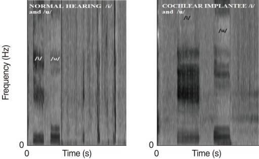 Spectrograph depicting formants F1 and F2 of vowels /i/ and /u/ of normal hearing peers and cochlear implantees. The figure shows formants F1 and F2 of vowels /i/ and /u/ of one single subject and does not include specific numerical values.