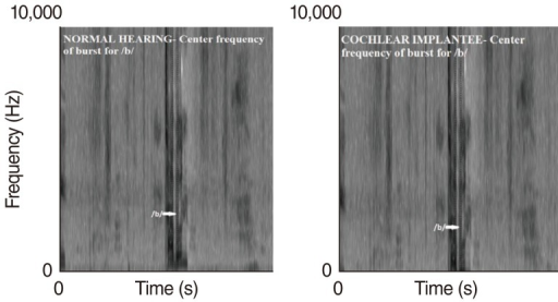 Spectrograph depicting center frequency of burst for /b/ (Hz) of normal hearing peers and cochlear implantees. The above spectrograph shows center frequency of burst for /b/ in Hz of one single normal hearing subject and one single cochlear implantee and does not include specific numerical values.