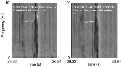 Spectrograph depicting center frequency of noise in /s/ for normal hearing peers and cochlear implantees. The above spectrograph shows center frequency of noise for /s/ (Hz) of one single normal hearing subject and one single cochlear implantee and does not include specific numerical values.