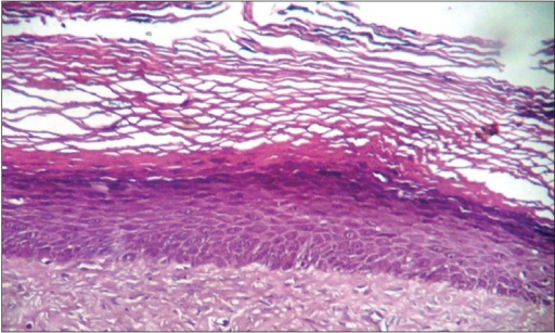 The photomicrograph shows cystic lumen lined by a continuous layer of orthokeratinized stratified squamous epithelium of 6-8 layer thickness with the absence of rete ridges. The lumen is extensively filled with orthokeratin (H&E stain, ×100)