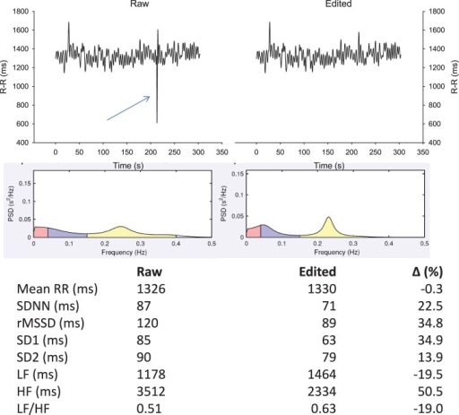 Effect of an ectopic beat on traditional heart rate (HR) variability (HRV) indices. R-R intervals recorded in supine position for 5 min with data either non-edited (upper left panel) or with beat removal and linear interpolation with adjacent values (upper right panel). Middle panels show the associated power spectral density (PSD) distribution on a spectrogram (Kubio HRV, 2.1, Biosignal Analysis and Medical Imaging Group, Kuopio, Finland) and lower panels, the common HRV indices derived from those two R-R series. SDNN, standard deviation of normal R-R intervals; rMSSD, square root of the mean of the sum of the squares of differences between adjacent normal R-R intervals; SD1, standard deviation of instantaneous beat-to-beat R-R interval variability measured from Poincaré plots; SD2, standard deviation of long-term beat-to-beat R-R interval variability measured from Poincaré plots; LF, low-frequency oscillations, HF, high-frequency oscillations.