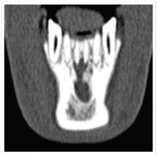 CT Image showing Dumbbell shape periapical lesion in relation to Mandibular central incisors.