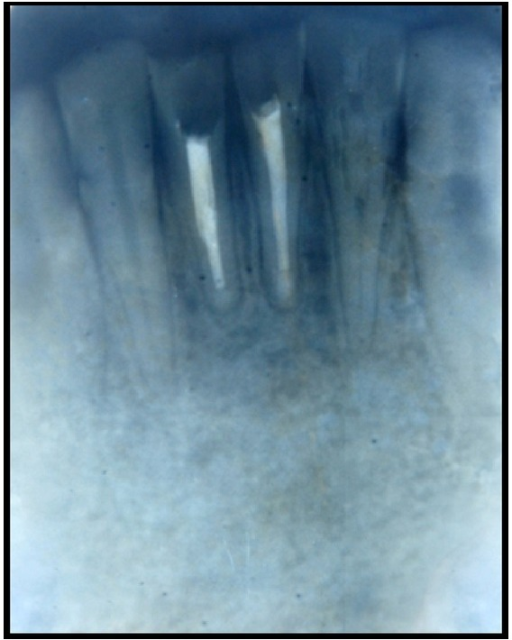 Postoperative radiograph after one year showing healing.