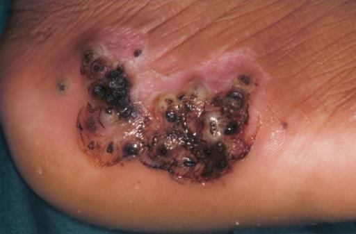 Infected Bug Bite On Dog