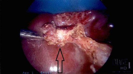 Cystic duct remnant retracted.