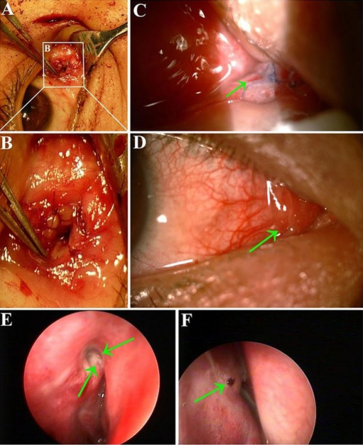 Photograph of the opening end of the newly-built lacrimal ducts. The intra-operative picture shows the opening of newly-rebuilt lacrimal duct in the lacrimal caruncle (A). The amplification figure of the newly-rebuilt lacrimal duct in the lacrimal caruncle (B). The appearance of the tear conduit on the lacrimal caruncle 5 days after surgery. The arrow refers to the opening point with suture and swollen conjunctiva (C). The appearance of the lacrimal caruncle 1 year later after surgery. The arrow refers to the area, where it is difficult for us to find the opening point (D). The opening point of the new duct was observed above the middle turbinate under nasal endoscopy. When we pressed the lacrimal sac area, we could see the air bubbles flow out from the new duct vianasal endoscope (the green arrow, E). The arrow refers to the staining on the tear duct opening nasally visualized by nasal endoscopy after the JDT1 test (F).
