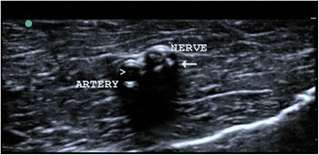 Ultrasonographic image of the nerve and artery.