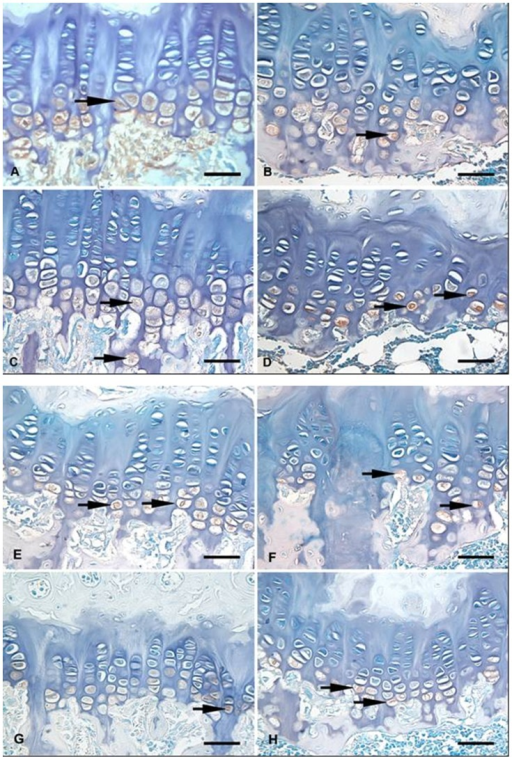 Growth plate photomicrographs of the following: A: non-OVX rats treated for 45 days with vehicle (GC45); B: OVX rats treated for 45 days with vehicle (GV45); C: non-OVX rats treated for 60 days with vehicle (GC60); D: OVX rats treated for 60 days with vehicle (GV60), E: OVX rats treated for 45 days with GS (GE45GS); F: OVX rats treated for 45 days with GS+CS (GE45GS+CS); G: OVX rats treated for 60 days with GS (GE60GS); and H: OVX rats treated for 60 days with GS+CS (GE60GS+CS). Histochemical staining of hyaluronan counterstained with methyl green (arrows). Scale bar = 50 µm.