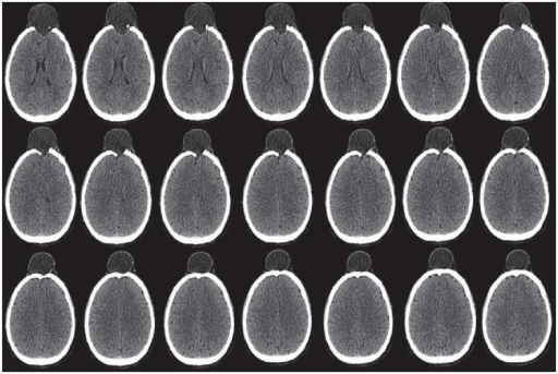 CT scanned images of patient with head injury.