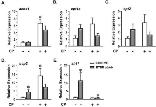 CP-900691-induced effects in the expression of genes associated with β-oxidation and mitochondrial homeostasis in RNA extracted from the renal cortex of BTBR WT and BTBR ob/ob miceRT-qPCR was used to determine the relative expression of genes associated with β-oxidation and mitochondrial homeostasis. BTBR WT, open bars (BTBR WT; n=4, BTBR WT + CP; n=4) BTBR ob/ob, closed bars (BTBR ob/ob; n=5, BTBR ob/ob + CP; n=5). Results are shown as means ± SEM. When statistically justified, gene expression values were log-transformed prior to statistical analysis. Statistical analysis was performed via one-way ANOVA followed by Newman-Keuls post-test. *P < 0.05 vs. BTBR WT; #P < 0.05 vs. BTBR ob/ob.