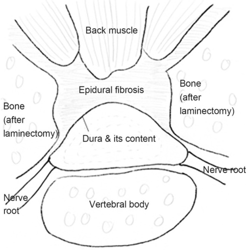 The schematic drawing of the cross-section of the laminectomized lumbar spine showing epidural fibrosis. The epidural fibrosis adheres to the dura in a curvilinear pattern.