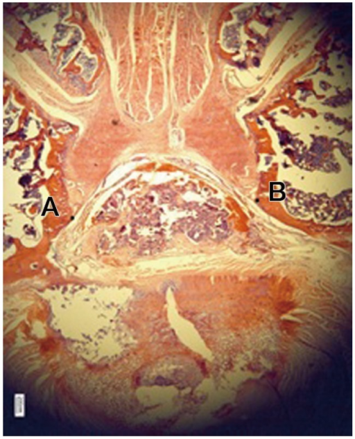Photograph showing post-laminectomy epidural fibrosis (between points A and B of the laminectomy site) (H&E, ×2).