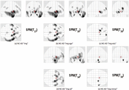 "Voxel-based morphometry showing the difference between normal control (NC) participants and less-educated Alzheimer dementia (AD) participants. The results are expressed in the form of Talairach coordinates (A)–(E) under 5 different conditions: FDG-PET images only (denoted as ""img""), images and age (""img-age""), images with minimental statement examination score (""img-mmse""), images with years of education (""img-edu""), and images with all 3 parameters (""img-all"")."