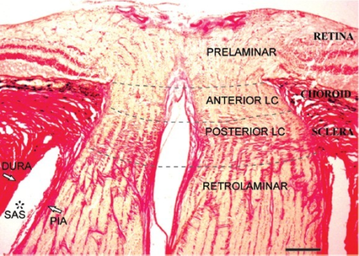 Laminar regions of the human optic nerve in Van Gieson stain.Longitudinal histological section of the human optic nerve demonstrates the prelaminar, anterior lamina cribrosa (anterior LC), posterior lamina cribrosa (posterior LC) and retrolaminar regions (separated by dotted lines). The prelaminar region is in continuation with retinal layers. Choroid layer is situated adjacent to the anterior LC region. Dense collagen beams that extend from the sclera distinguish the posterior LC region. The absence of dense collagen beams and the relative increase in optic nerve diameter characterises the retrolaminar region. Subarachnoid space (SAS*) between pia and dura mater in retrolaminar region is also labelled. Scale bar: 300 μm.
