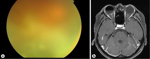 Fundus findings before and during vitrectomy. a A color fundus photograph of the right eye showing severe vitreous opacity. b Axial gadolinium-enhanced T1-weighted magnetic resonance imaging of the brain shows enhancement of the right optic nerve.