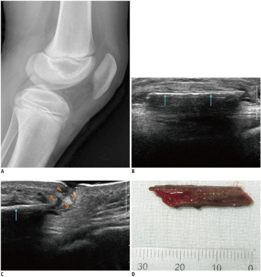 Case of retained foreign body in 10-year-old male with complaint of knee pain after soccer.A. Plain radiography reveals diffuse soft tissue swelling in pre-patellar area but discrete foreign body is not seen. B, C. Ultrasound shows linear echogenic foreign body (arrows) with posterior shadowing superficial to patellar tendon. There is skin defect (arrowheads) with sinus tract from distal end of foreign body. Foreign body was removed with ultrasound guidance and hydro-dissection techniques. See also Video 1 in the onlineonly Data Supplement. D. Removed wooden foreign body.