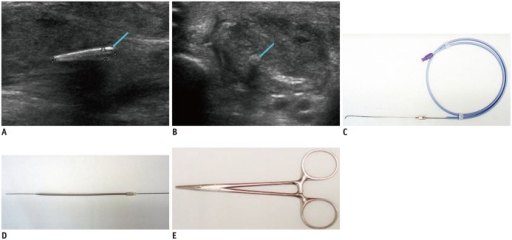 Case of retained foreign body in 54-year-old male who complained of painful foot swelling for duration of 4 months. He received stab injury at construction site and removed rusted nail at time of original injury.A, B. Longitudinal (A) and transverse (B) ultrasounds show echogenic foreign body (between markers, arrows) in abductor halluces longus muscle. As foreign body was located in deep area and adhesion with surrounding soft tissue was suspected due to long term presence of FB, serial dilators with guide wire were employed. C. Guide wire was inserted through 18-G spinal needle. D. After removal of 18-G spinal needle, tract was dilated with 7 to 12 Fr serial dilators introduced along guide wire. E. Mosquito forceps (Halsted-Mosquito Forceps, 12 cm) were used to remove FB. FB = foreign body