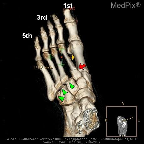3D Reconstruction of the left foot (dorsal oblique view)shows a fracture of the base of the 2nd metatarsal (red arrow) and dislocation of bases of the 3rd-5th metatarsals at the metatarsotarsal joints (green arrowheads) consistent with fracture-dislocation at the Lisfranc joint.