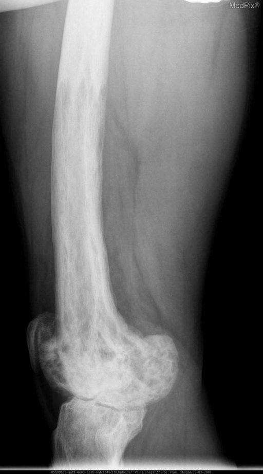 Lateral radiograph of the left femur reveals the blade of grass appearance of osteoclastic activity in the mid-shaft  cortex with sharp borders, advancing along the shaft of the femur.  Additionally, bone remodeling with thickening of the cortex, and a coarse trabecular pattern in the medullary portion of the femur is noted.  There is also a increase in bone density, with diffuse sclerotic change, enlargement and widening of the epiphysis.  Involvement of the proximal medial tibia is also noted.