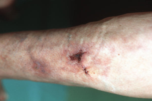 Calciphylaxis cutis on admission. After transfer to the dermatologic department, about 1 month after first incidence of a calciphylactic ulcer of the lower right leg.