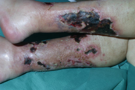 Calciphylaxis cutis, 2 months after admission. Large ulcerations at both lower legs with signs of superinfection.