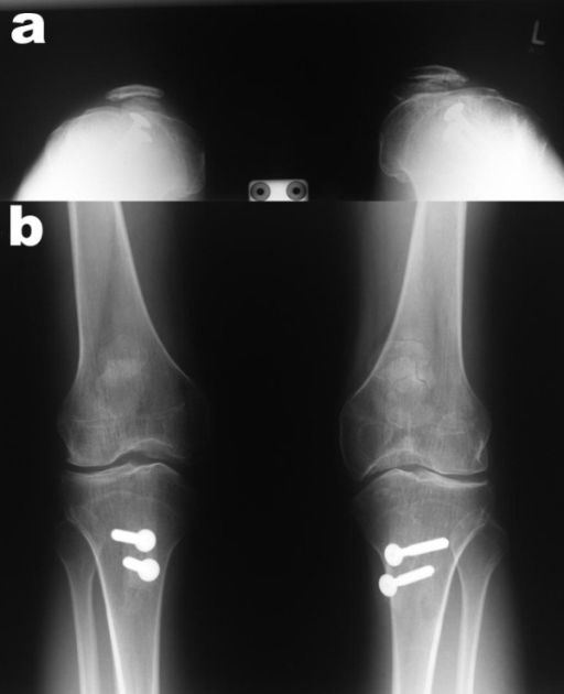 Postoperative x-ray (a: skyline view (60° flexion) and b: anterior posterior view) of both knees demonstrating well centred patellae.