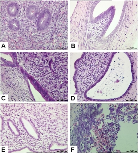 Histological examination of xenotransplanted human endometrial tissues.(A) Human endometrial tissues before transplantation. Endometrial tissues showed simple columnar epithelium and dense stroma, which characterized a typical human early proliferative phase endometrium. (B) Control group without hormone treatment. The tissue fragments were small in size and increased in lumen diameter. (C) 14d group (E2 provided alone). Glandular epithelium was in high columnar form with a significant pseudostratification of the nuclei. (D) 21d group (E2 provided for 21 days of which P4 provided for last 7 days). Glandular epithelial cells were changed into low columnar. Subnuclear vacuolation was clearly visible in the glandular epithelial cells with nuclei close to the basilar membrane, whereas stromal cell density was decreased. (E) 28d group (E2 provided for 28 days of which P4 provided for last 14 days). The cell-cavity surface with irregular margins contained a large number of small secretion bubbles. Interstitial edema was observed, stromal cells were enlarged, and the nuclei clearly showed a typical decidual-like stromal change. (F) 31d group (hormones were provided for 28 days and then no hormone support for the remaining 3 days). A large number of leukocytes were infiltrated, and the endometrial tissue structure was disintegrated with erythrocyte leakage. Original magnification: 400× (H&E).
