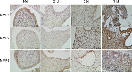Immunohistochemistry of MMP-1, 2, and 9 in transplanted tissues.During the experiment stages, MMP-1, 2 and 9 had different changes in expression level. MMP-1 was expressed in the glandular epithelium and stroma in 14d, 21d and 28d group, and MMP-1 expression was increased in 31d group. MMP-2 was weakly expressed in transplanted tissues in 14d and 21d group, whereas expression in epithelial and stromal cells was significantly increased in 28d and 31d group. MMP-9 was weakly expressed in glandular epithelium and stromal cells, with no change in 14d, 21d and 28d group in expression level. However, MMP-9 expression was increased significantly in 31d group. Original magnification: 200×.