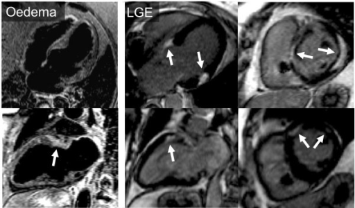 Cardiac MRI with T2-weighted STIR images (left panel) showing oedema (arrow) and (middle and right panels) extensive patchy late gadolinium enhancement typical of sarcoid.
